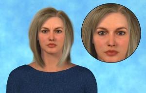 Link to the Botox animation